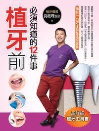 植牙前必須知道的12件事